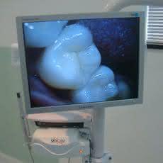 Foto - Câmera Digital Intra-Oral