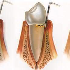 Foto - Periodontia (tratamento da gengiva)